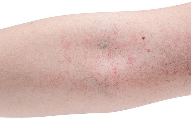 Điều trị sốt xuất huyết ở người lớn