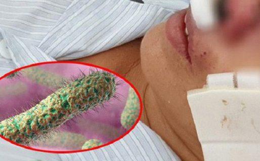 Có virus ăn thịt người ở Việt Nam không