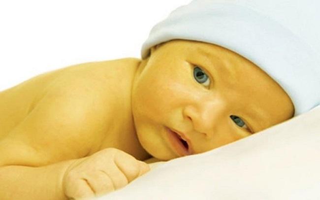 Bệnh vàng da ở trẻ sơ sinh có nguy hiểm không?