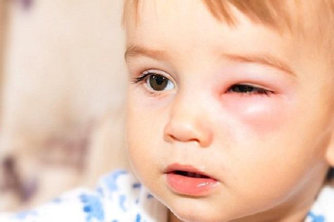 Cách chữa đau mắt cho trẻ sơ sinh