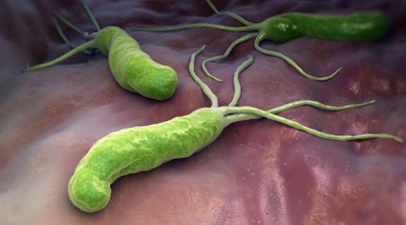 Vi khuẩn HP có diệt được không?