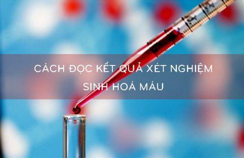 Đọc kết quả xét nghiệm sinh hóa máu như thế nào?