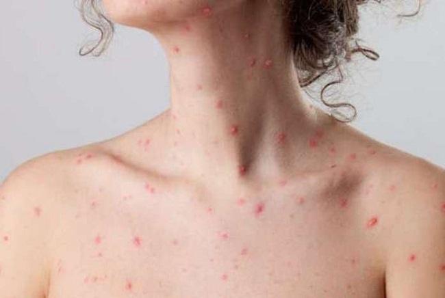 Bệnh thuỷ đậu có bị 2 lần không?