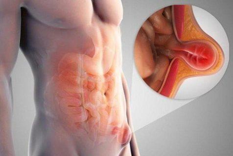 đau bụng dưới bên phải ở nam giới