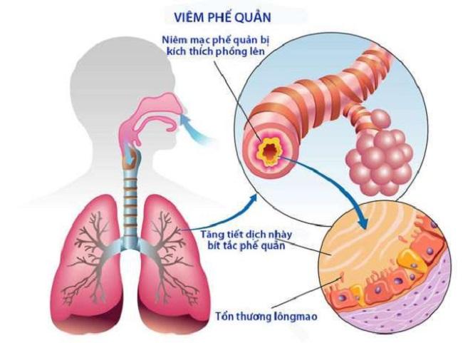 Điều trị viêm phổi ở người lớn hiệu quả