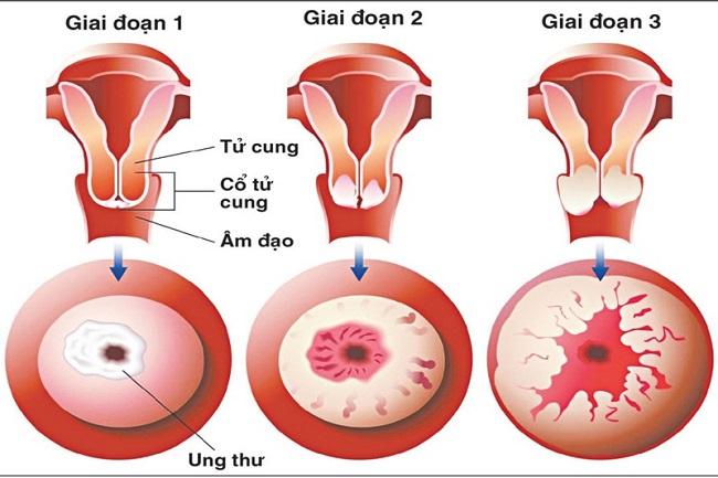 Ung thư cổ tử cung có chữa được không?