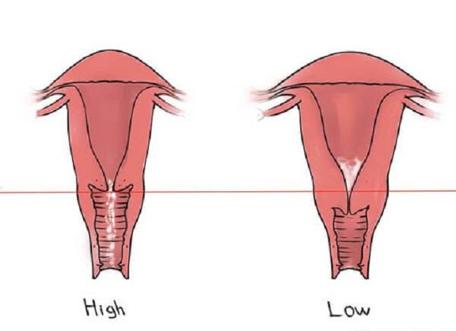 Cổ tử cung bao nhiêu là ngắn?
