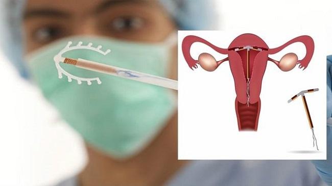 Đặt vòng tránh thai sau sinh mổ có được không?