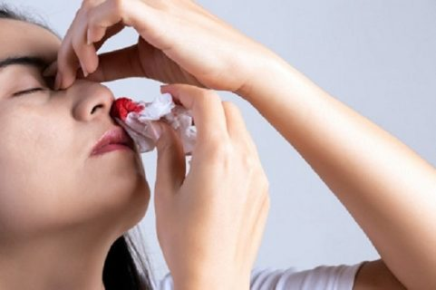 Hiện tượng chảy máu cam ở người lớn báo hiệu điều gì?