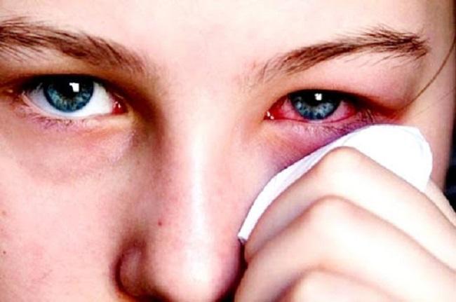 Thuốc Nhỏ Mắt Trị đau Mắt đỏ 1
