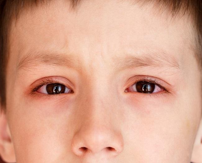 Trẻ Sơ Sinh Bị Sưng Mí Mắt Nguyên Nhân Do đâu1